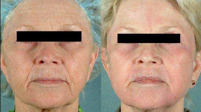 Laserowy resurfacing twarzy