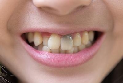 GoWhite къде да купя, GoWhite нежелани ефекти, GoWhite резултати, jak wybielić zęby domowym sposobem wizaz